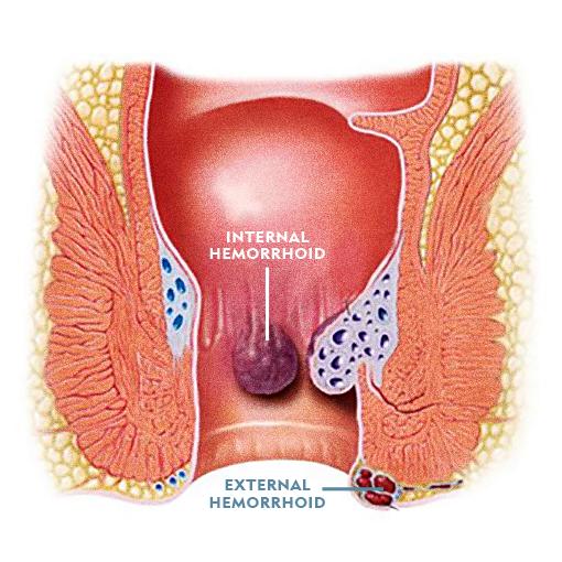 Diagram of Internal Hemorrhoid