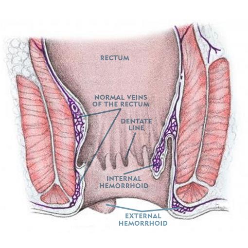Diagram of External Hemorrhoid